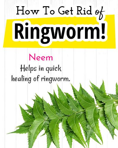 How to Get Rid of Ringworm? - Home Remedies for Ringworm #homeremediesforringworm
