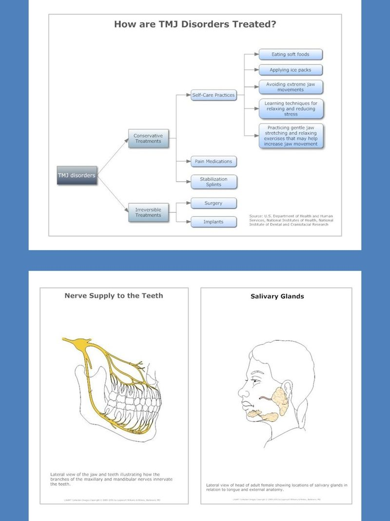 dental care and diseases charts and diagrams with private label rights 80 dental care and diseases pictorial charts and diagrams that communicate more  [ 800 x 1067 Pixel ]