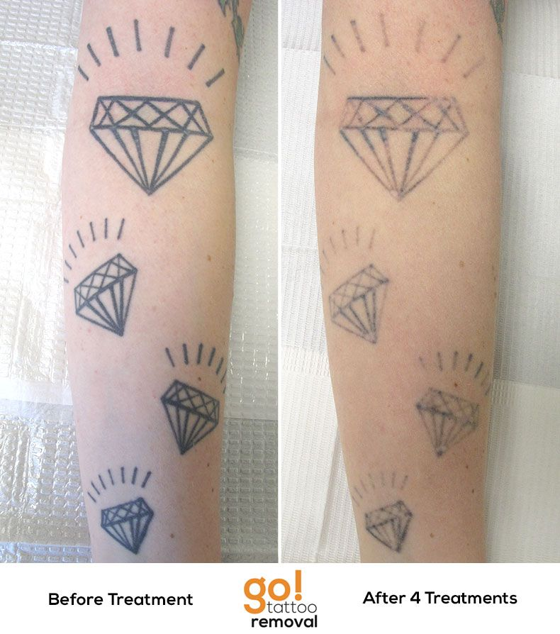 100 laser tattoo removal my toronto tattoo removal for I want to remove my tattoo at home