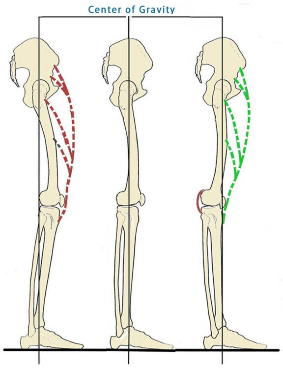 How Hyperextending Your Knees Affects Your Spine | Yoga ...