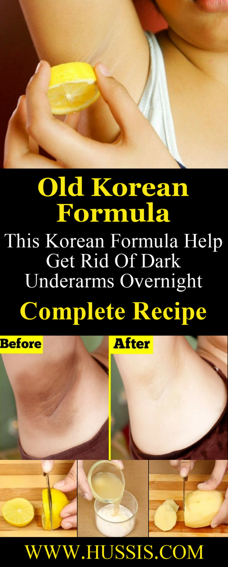 Old Korean Formula This Korean Formula Help Get Rid Of Dark Underarms Overnight Complete Recipe Dark Underarms Dark Armpits Natural Skin Care