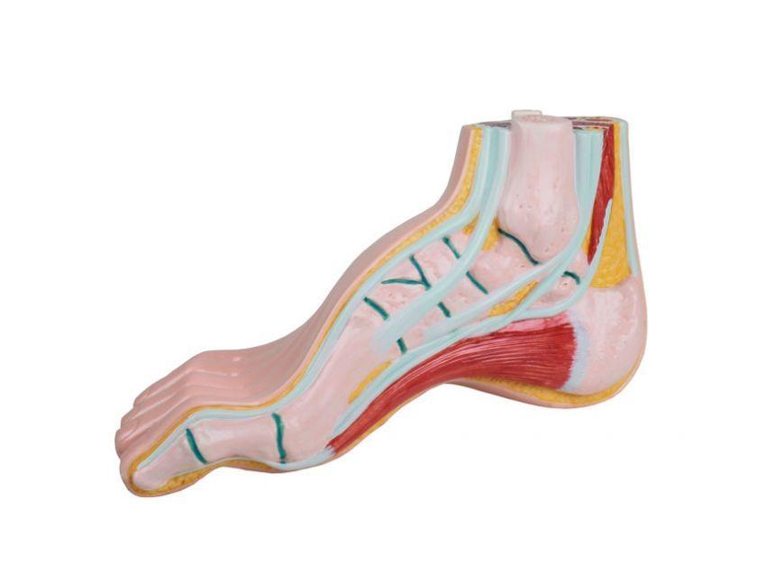 Co To Jest Stopa Wydrazona Przyczyny Leczenie Wkladki Orteza Medicalbroker Shoes Wedges