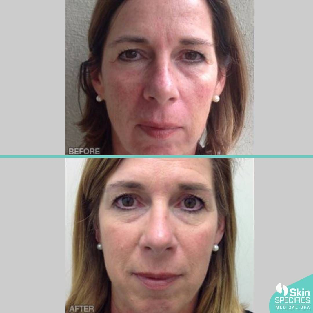 IPL/Photofacial rejuvenation a safe and non-invasive technology to