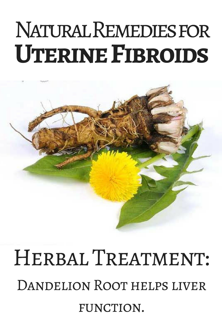 Uterine fibroids: what it is, symptoms, how to treat