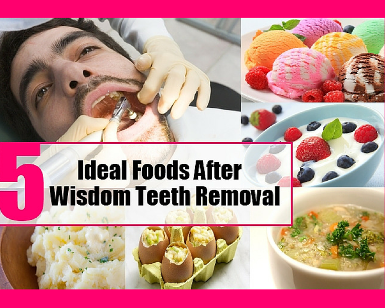 What Foods Can You Have After Wisdom Teeth Removal