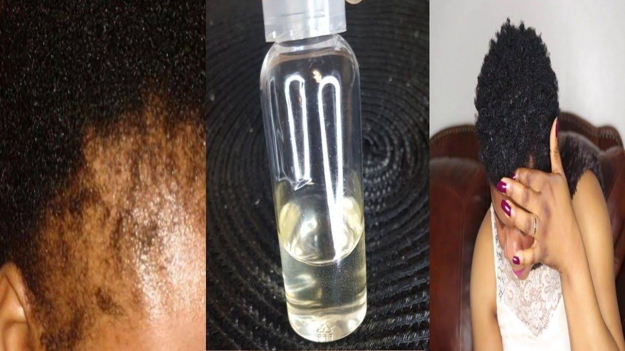 Use this to grow back your Edges in a week!!! Edges hair