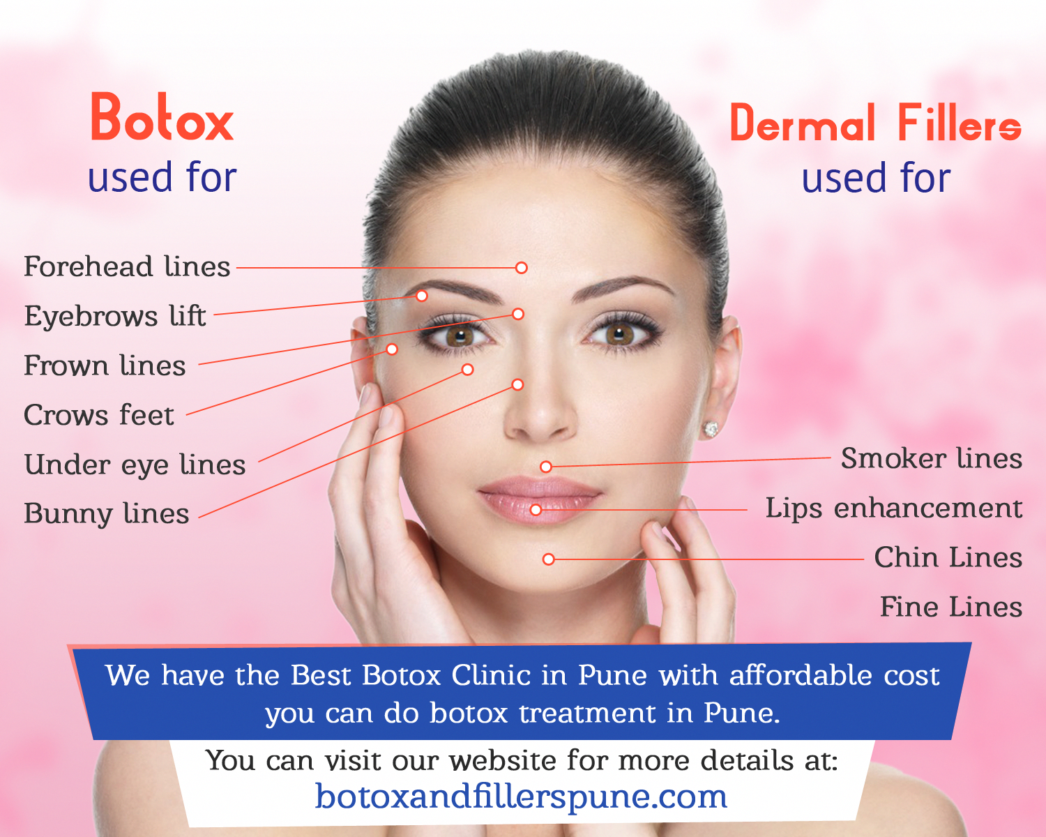 Botox For Bags Under Eyes Cost | Brydens Xpress