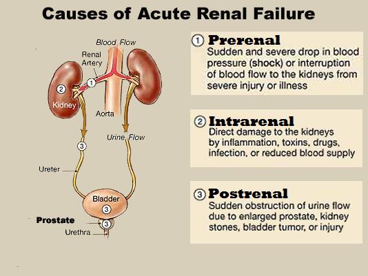 Causes Of Acute Renal Failure Acute Kidney Injury Acute Renal Failure Renal Failure
