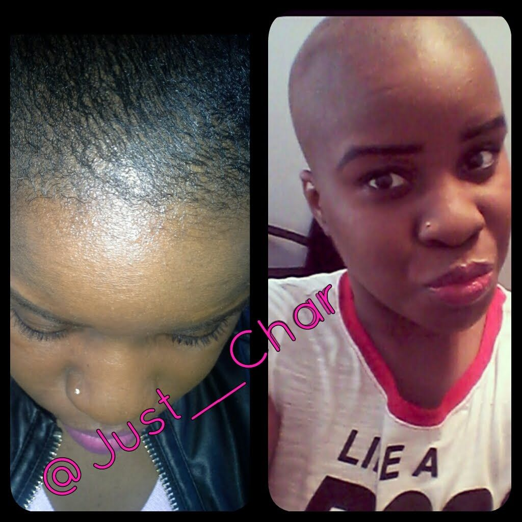How To CombatCure Alopecia Hair Loss With Biotin u Pumpkin Seed