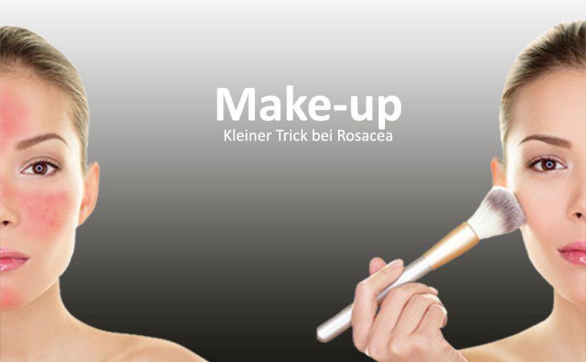 Welches Makeup Ist Gut Bei Rosacea Rosacea Makeup Rosazea Kopfschmerzen