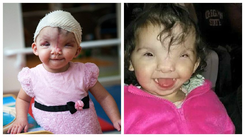 Catching up with violet 1 year after tessier cleft repair