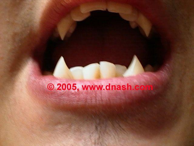 Teeth by Dnash custom vampire fangs, werewolf teeth, and