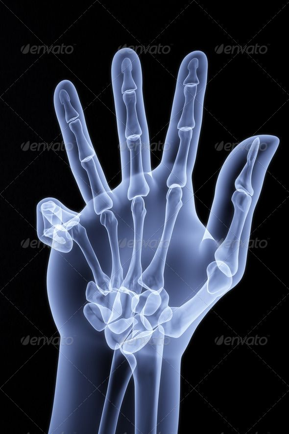 palm ... 3d, anatomic, anatomy, arm, black, blue, body, bone ...