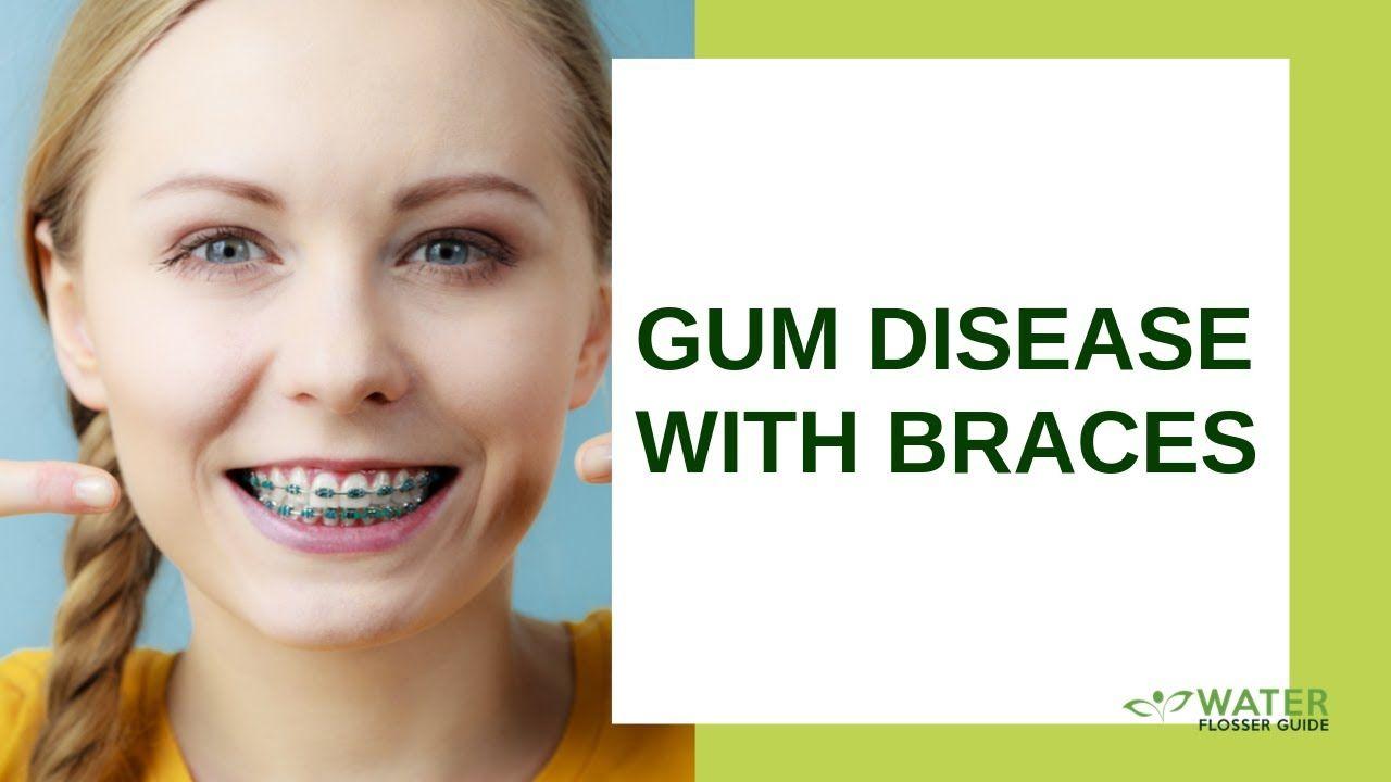 Gum disease with braces httpsyoutubeby4sh7hzuqu did