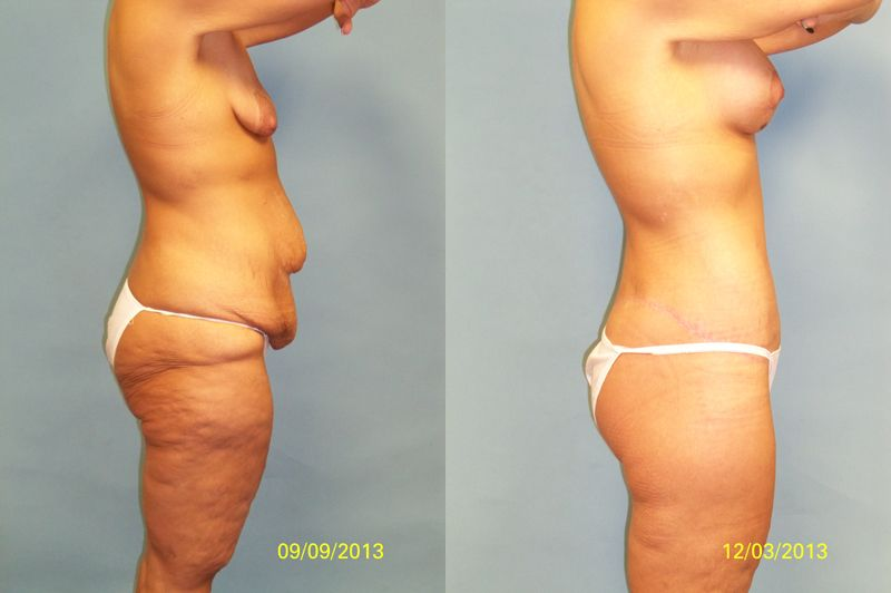 lower body lift before and after pictures - Google Search