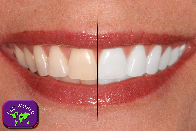 Teeth Whitening Tutorial In Photoshop Cc Cs6 Cs5 Cs3 Photoshop