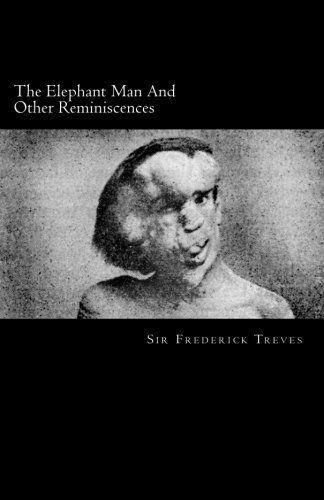 NEW The Elephant Man And Other Reminiscences by Sir Frederick Treves | Elephant, Man, Joseph merrick