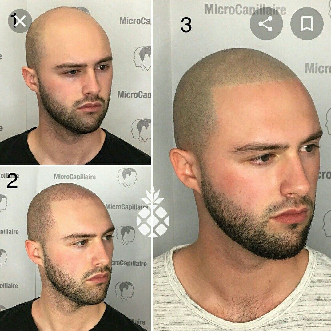 Pin Von Yildirim Zanajana Auf Hair In 2020 Haar Tattoos Glatze Beauty Tipps