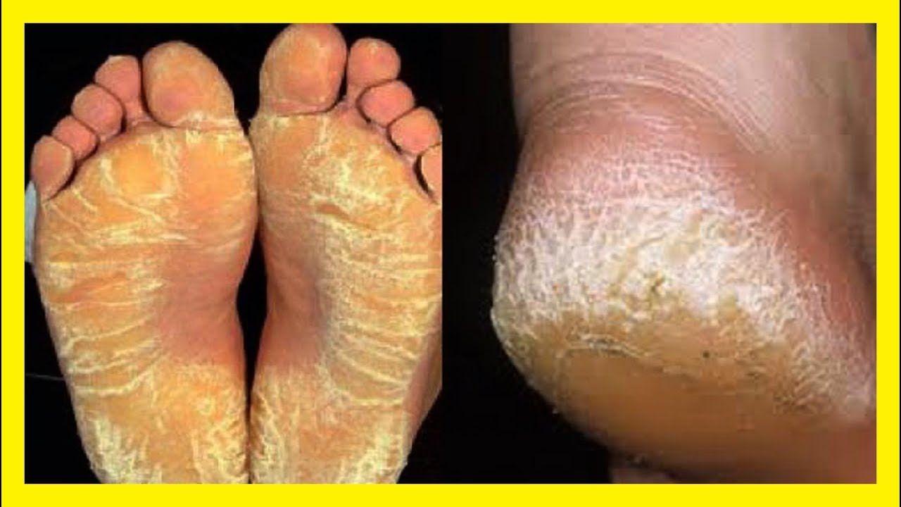 Como quitar los callos de la planta del pie