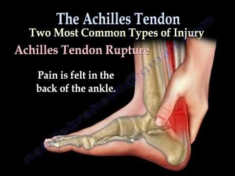7 Effective Home Remedies For Achilles Tendinitis With Images