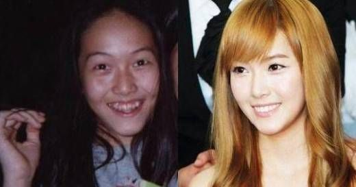Kpop Female Idols Before And After Plastic Surgery Celebrity Plastic Surgery Plastic Surgery Cosmetic Surgery