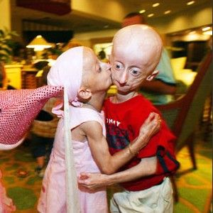 Progeria- Is a very rare disease that causes children to ...