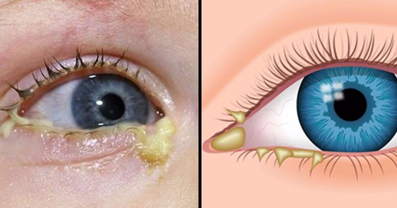 This Leaking From Your Eye Can Be a Sign of a Dangerous