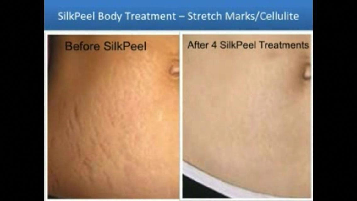 Pin On Stretch Marks On Thighs