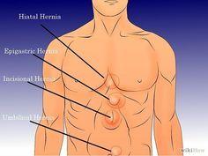 Hernia hiatala - simptome, diagnostic, tratament