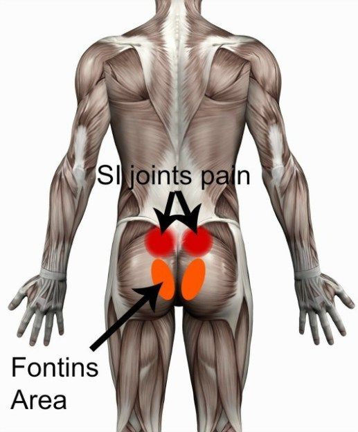 Si Joints And Fontins Area Sacroiliac Joint Health Pinterest