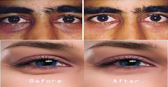 varico vass eye eye