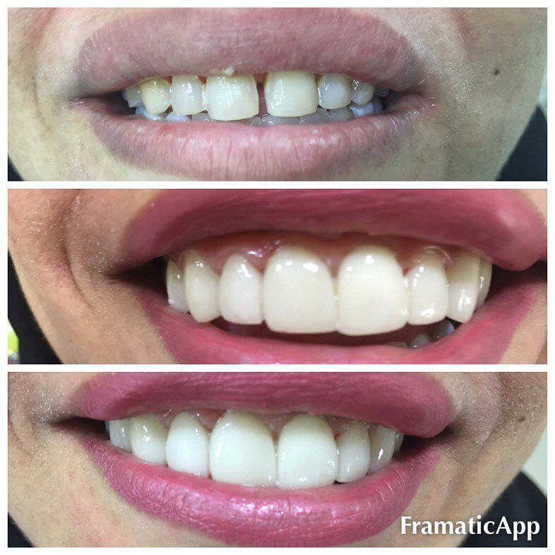 E max lumineers 8 upper anterior teeth#veneers #dental_clinic #abudhabi #عيادة_اسنان #تجيل_الاسنان #تجميل_الاسنان #تبييض_أسنان تجميل الاسنان بالقشره e max by dr_khansa_dentist Our Dental Veneers Page: http://www.lagunavistadental.com/services/cosmetic-dentistry/veneers/ Other Cosmetic Dentistry services we offer: http://www.lagunavistadental.com/services/cosmetic-dentistry/ Google My Business: https://plus.google.com/LagunaVistaDentalElkGrove/about Our Yelp Page…