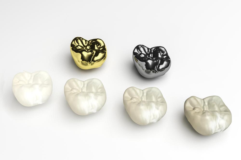 Same Day Dental Crowns Richmond Va Strengthen Teeth Porcelain Crowns Dental Crowns Dental Restoration