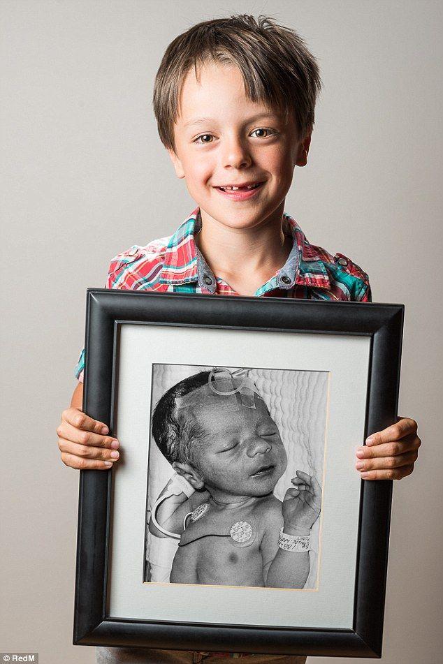 Defiant then-and-now portraits show how premature babies ...