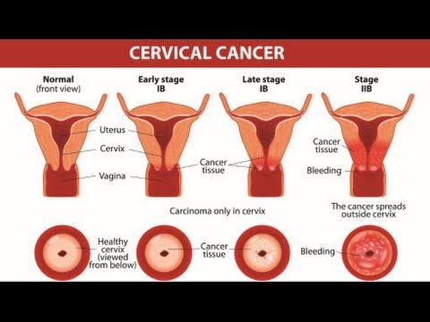 10 Warning Signs of Cervical Cancer You Should Not Ignore - WATCH VIDEO  HERE ...