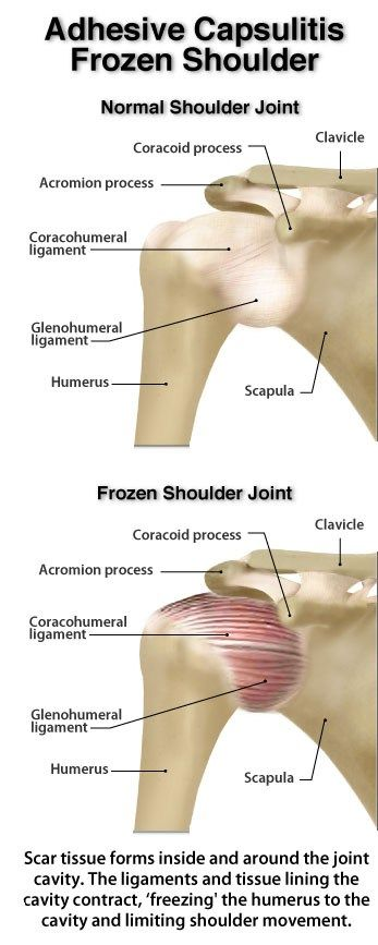 Diagram Frozen Shoulder Rehab Rotator Cuffs Shoulders Neck