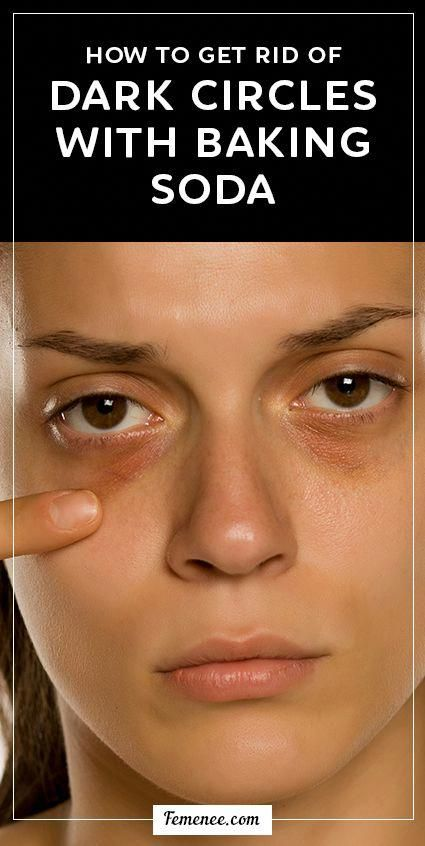 How to Get Rid of Dark Circles with Baking Soda # ...