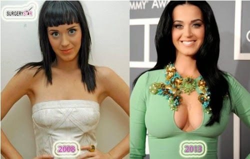 Has Katy Perry Had Plastic Surgery Breast Implants Before