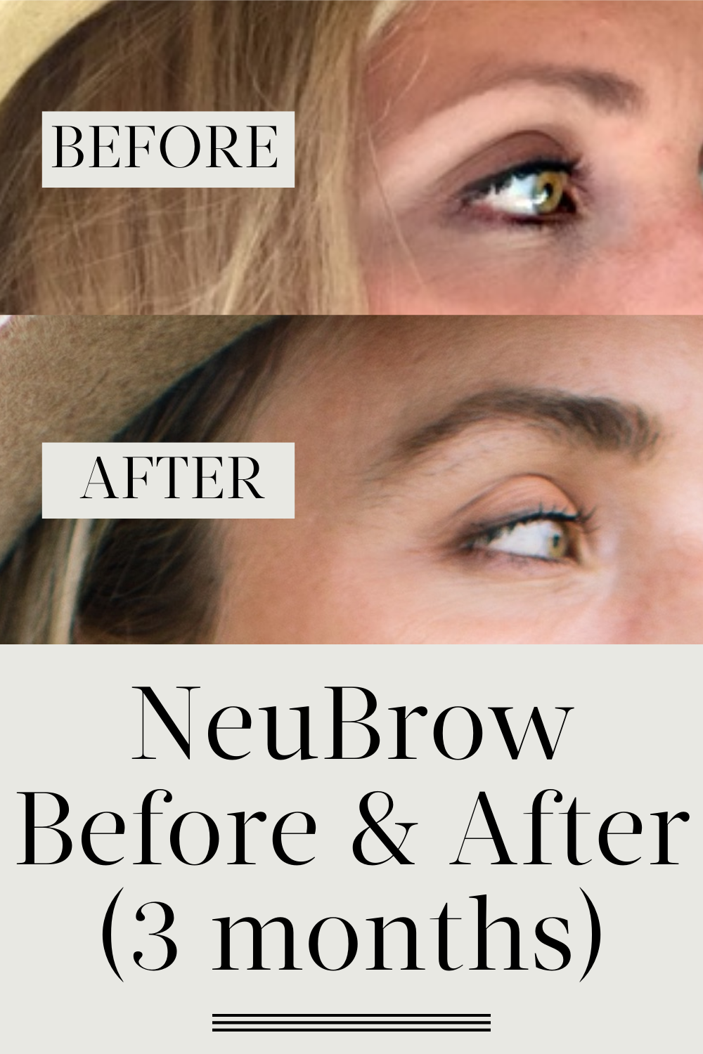 My neuBROW Before and After Pictures + The 5 Best Brow ...