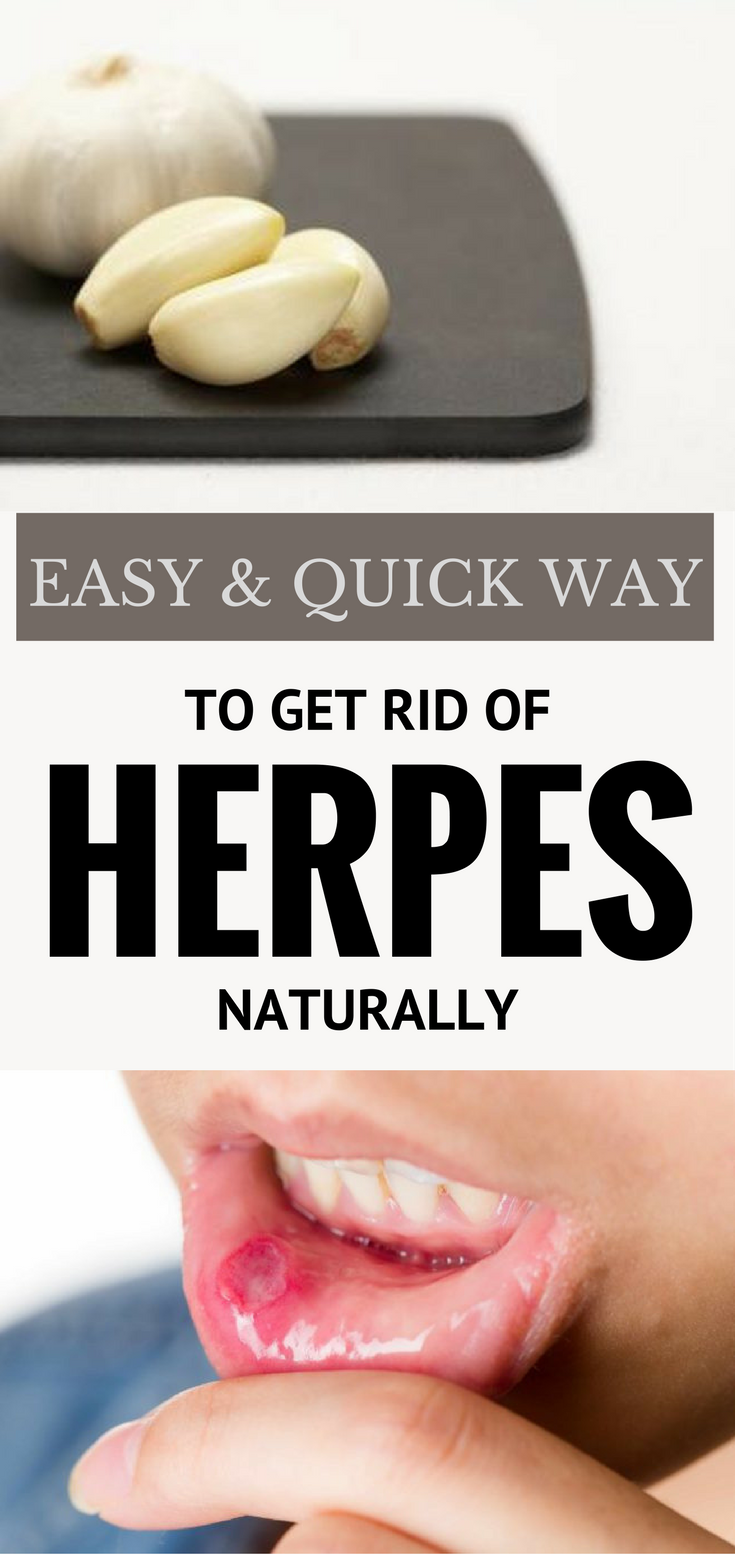 Easy and Quick Way to Get Rid of Herpes Naturally  All beauty I