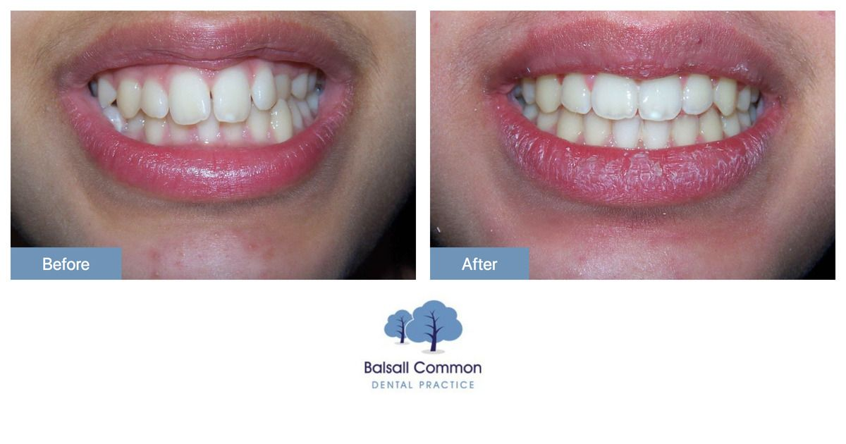 Invisalign is a modern and efficient way of straightening