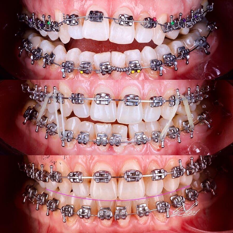 Appareils dentaires orthodontics appareils dentaires