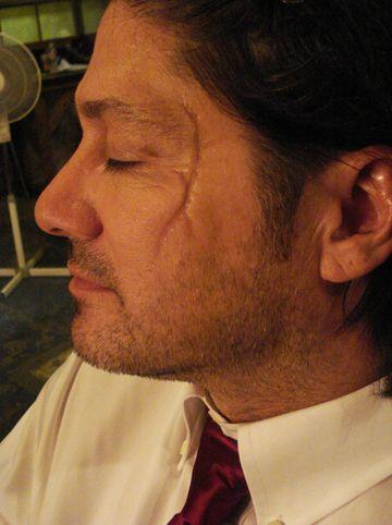 facial scar makeup