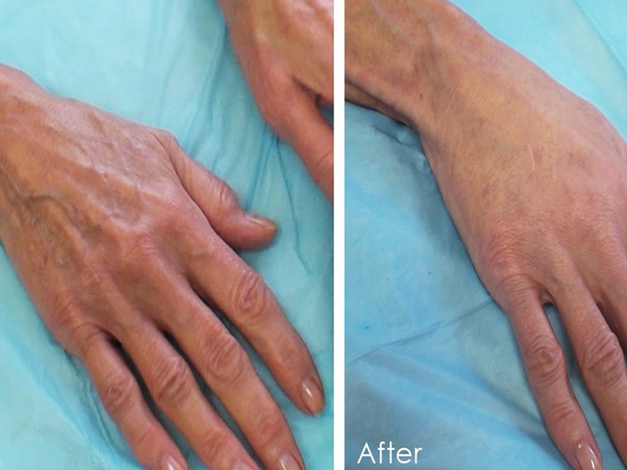 Restore your aging hands with this new procedure