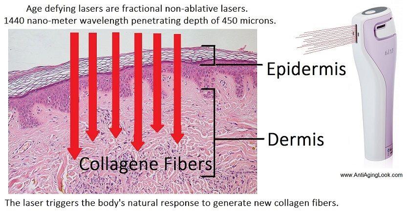 TRIA age defying laser collagen