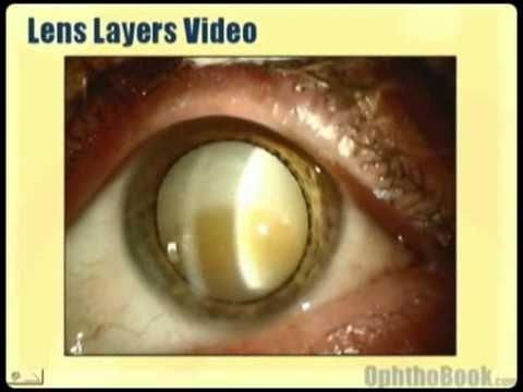 Anatomy Of The Eye Visual System Pinterest Eye Anatomy