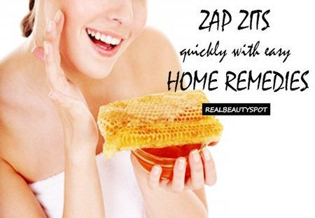Zap zits quickly with easy home remedies. #DIY #howto #beautytips - bellashoot.com