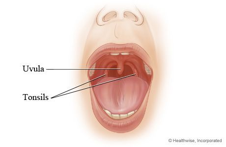 The Tonsils (Human Anatomy): Picture, Definition, Location, and