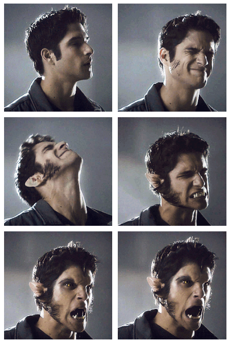 Tyler Posey (Scott) - Teen Wolf  Loved this episode and this part