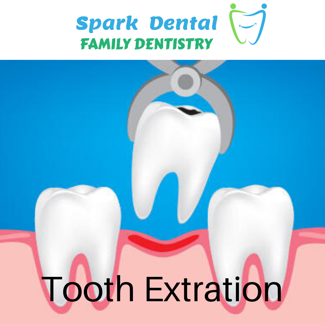 Tooth Extration Spark Dental in 2020 Dental emergency